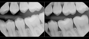 Bitewing Dental X-Ray