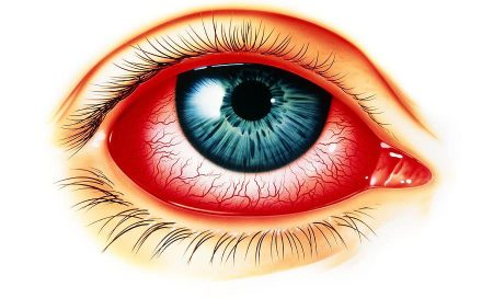 artwork-showing-eye-with-allergic-conjunctivitis-john-bavosi