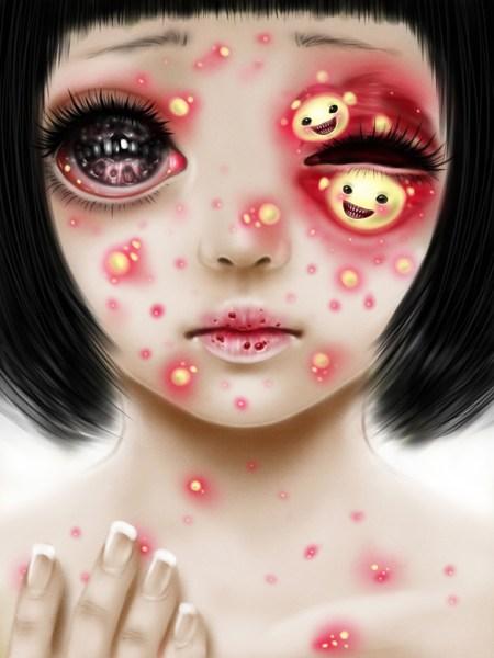 acne_by_saccharinestrychnine-d5bjzdq