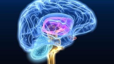 صورة الصداع النصفي – اسباب وعلاج الصداع النصفي او الشقيقة