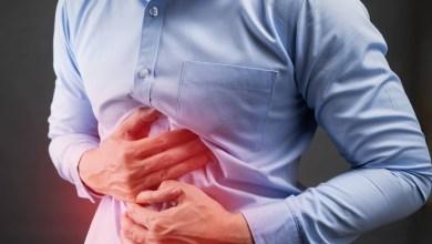 صورة 10 نصائح وعلاجات قرحة المعدة
