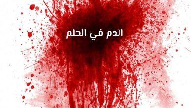 صورة تفسير حلم نزيف الدم في المنام
