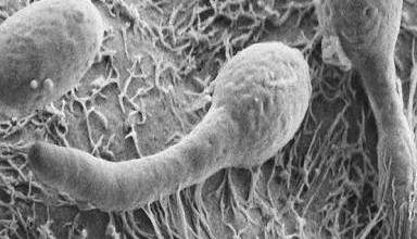 Photo of الفطريات في الأمعاء