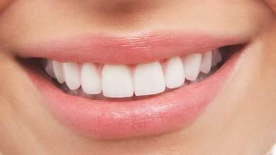 صورة تعرف على أسباب تسوس الأسنان