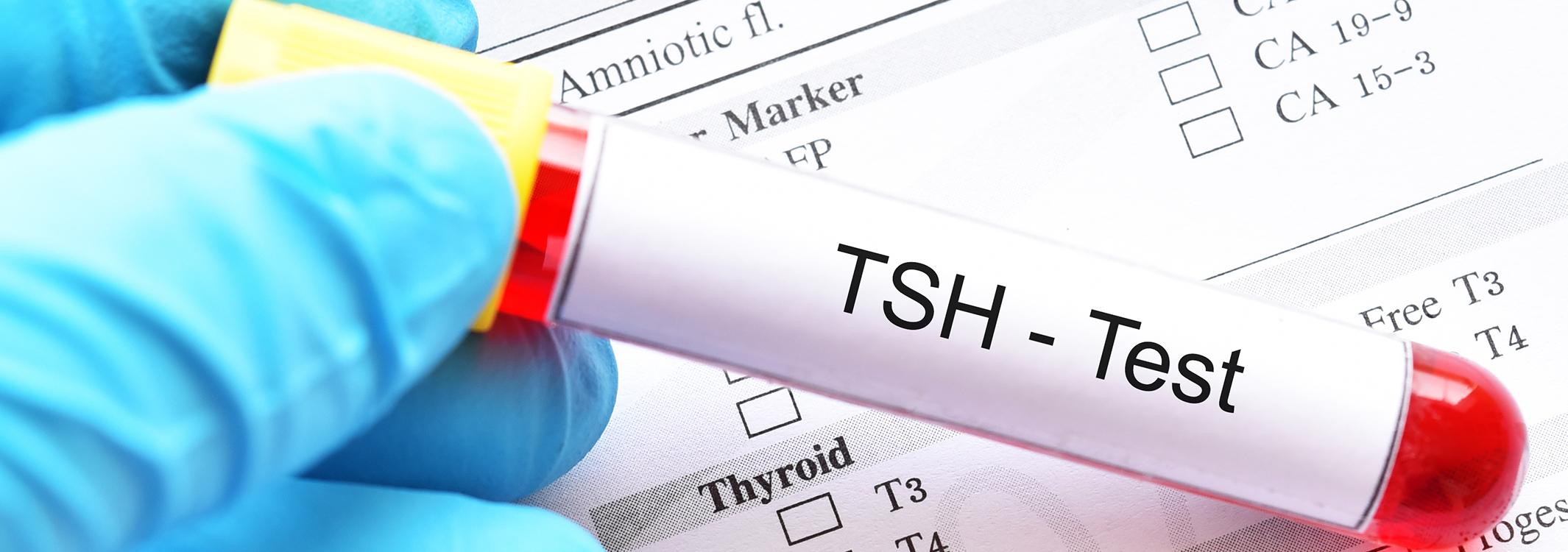 تحليل الغدة الدرقية Tsh إذا كان منخفض مجلة رجيم