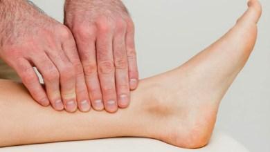 صورة علاج جلطة الساق بالأعشاب