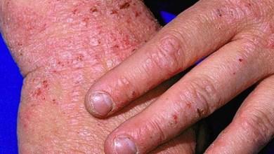 Photo of علاج الأكزيما في اليد