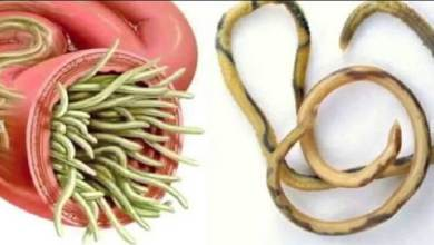 صورة طرق طبيعية لعلاج ديدان المعدة بالاعشاب