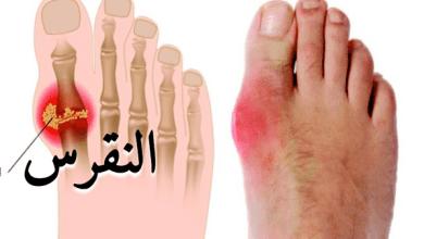 Photo of علاج اعراض النقرس الحاد والتخلص من الألم