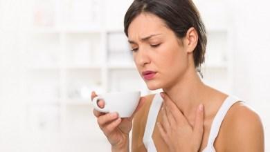 صورة علاج بحة الصوت والاحبال الصوتية والتخلص من أسباب التهاب الحنجرة