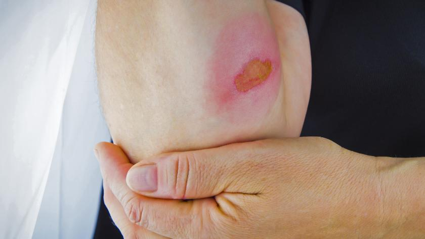 العلاجات المنزلية لعلاج الحروق