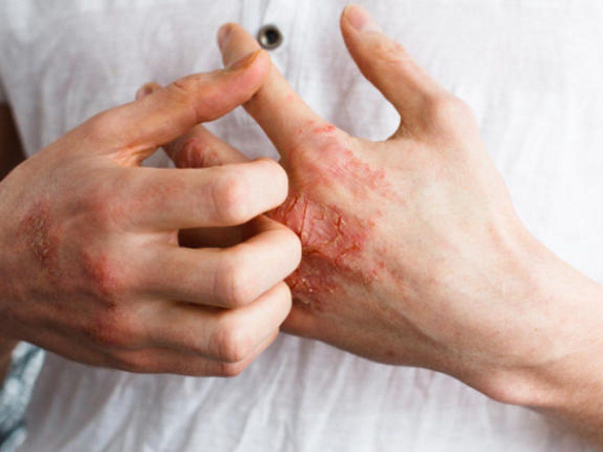 تشققات اليدين والاكزيما