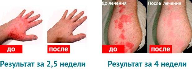 rekzemin лечит псориаз