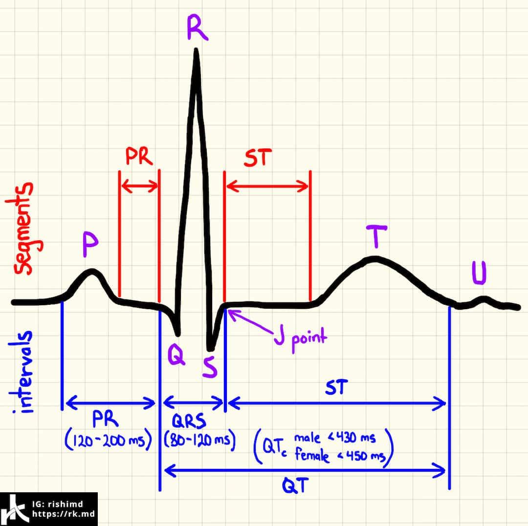hight resolution of instagram live normal ekg waves intervals and segments