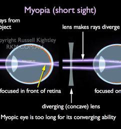 labelled diagram of myopic eye short sight  [ 1024 x 768 Pixel ]