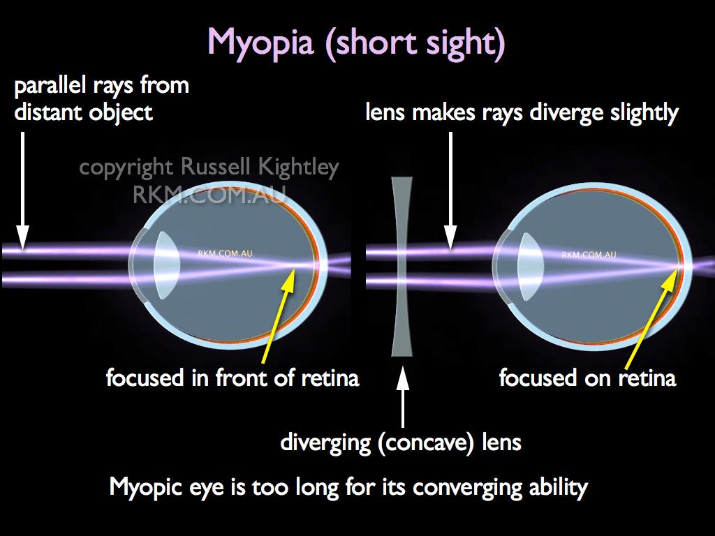 hight resolution of labelled diagram of myopic eye short sight