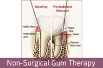 Non-Surgical Gum Therapy