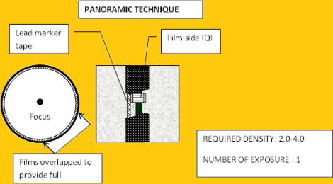 RT procedure