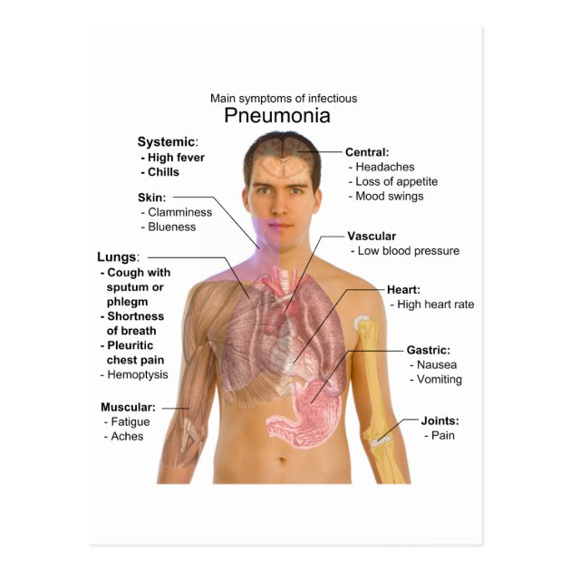 Chart of the Symptoms of Pneumonia Postcard | Zazzle.co.uk