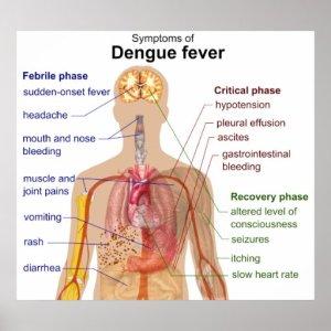 Diagram of the Main Symptoms of Dengue Fever Poster | Zazzle