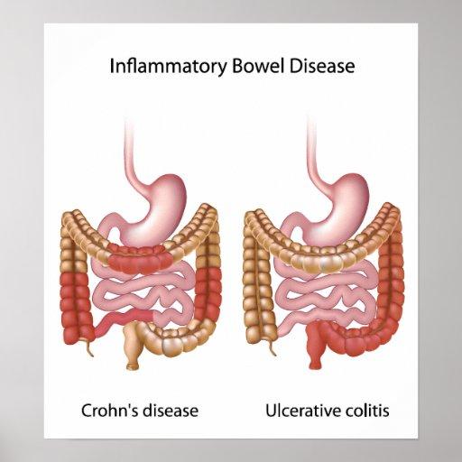 inflammatory bowel disease (ibd) poster   Zazzle
