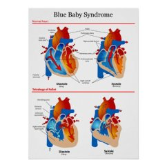 Anatomical Heart Diagram Ceiling Fan Wiring Two Switches Of Blue Baby Syndrome Poster Zazzle Com