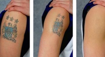 Top 5 Tattoo Removal Tips