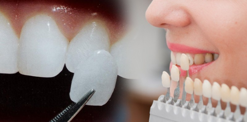 Dental bonding and veneers in cosmetic dentistry