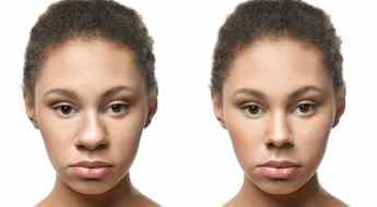 ethnic rhinoplasty benefits