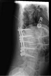 Spinal Fusion from Right Side