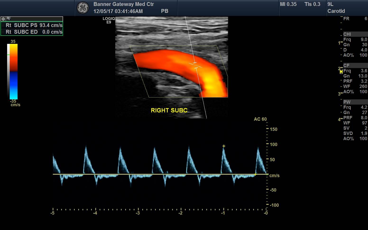 50 Us Extracranial Arterial Duplex Comp Bi