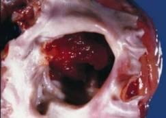 Atrial Myxoma (benign heart tumor)