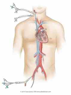 A catheter system provides heart-lung bypass and keeps theheart protectedduringthe procedure.