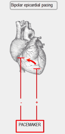 Biventricular Pacemaker