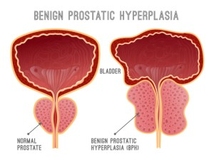 comparison of normal prostate and prostate with BPH