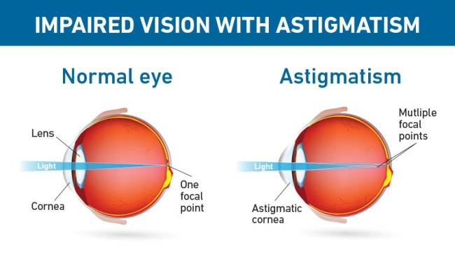Impaired vision with astigmatism (foto For Your Eyes Only)