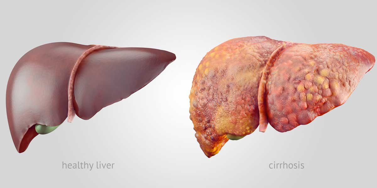 Another Reason to Ban Monsanto's Roundup: Fatty Liver ...