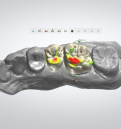 skull dental diagram [ 1800 x 1100 Pixel ]