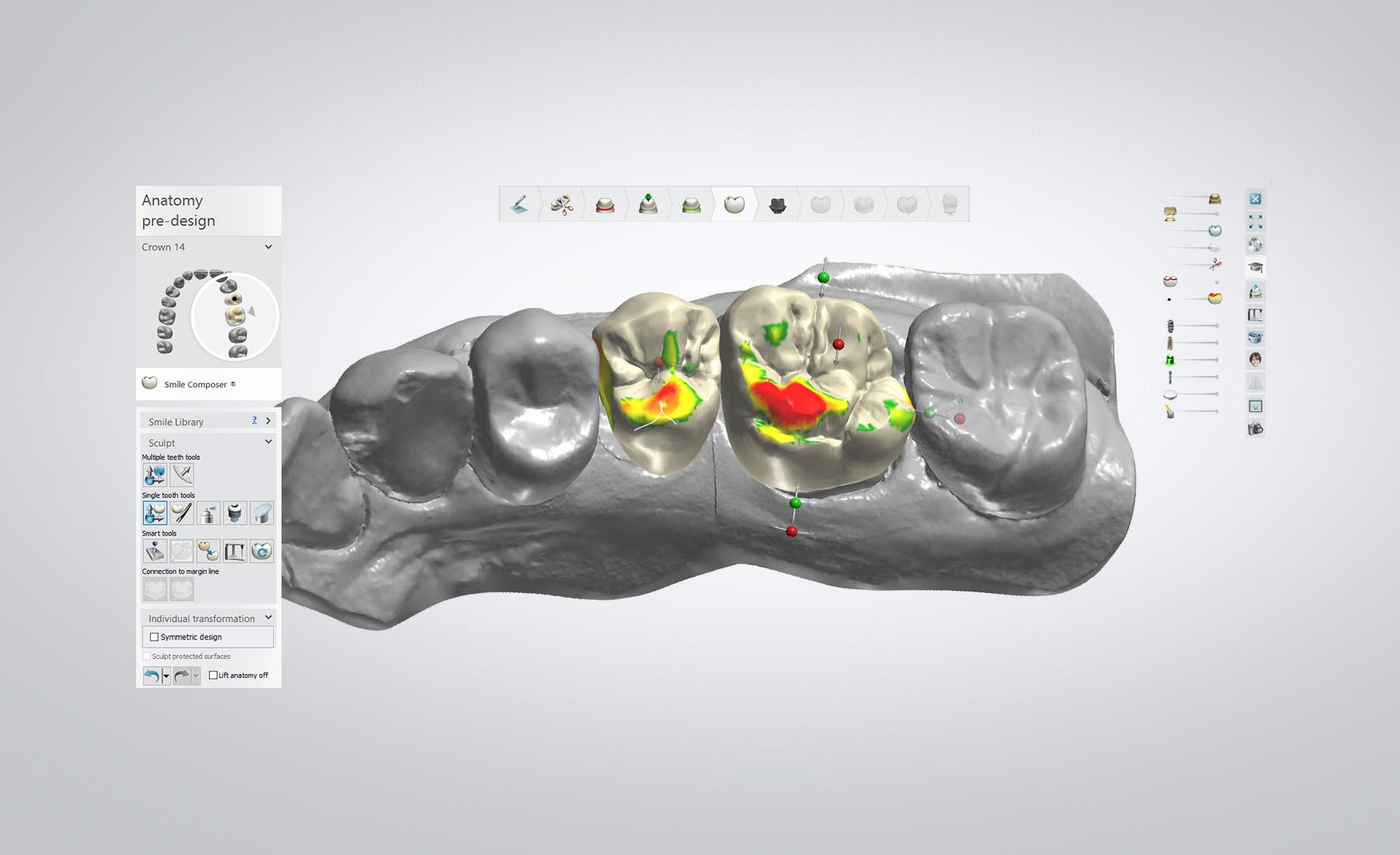 hight resolution of skull dental diagram