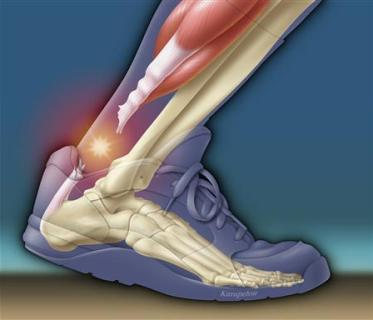 Image result for achilles tendon nba players