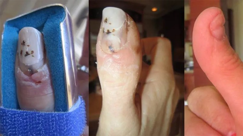 Le Meilleur Owner Claims 225K Bentley Did This To His Wife S Thumb Ce Mois Ci
