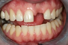 Missing front tooth smile before smile makeover