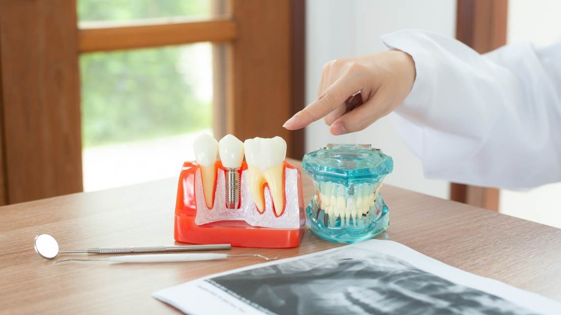 dental implant awareness month