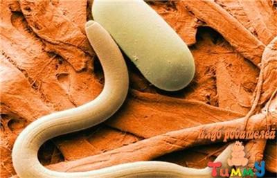 Энтеробиоз: обзор заболевания и рекомендации по лечению