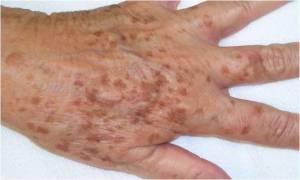 lipofuscin, the toxic waste of aging
