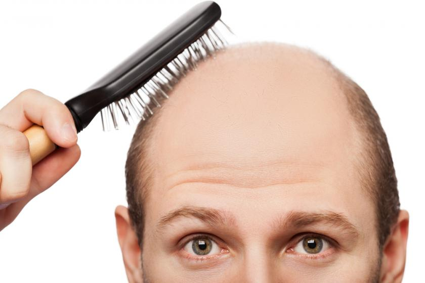 Does Fungal Infection Cause Male Pattern Baldness And Heart Disease Enchanting Male Pattern Baldness Causes