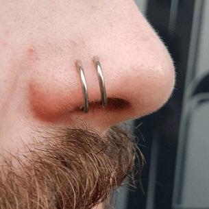 Lumps and Bumps - A well healed pair of nose piercings