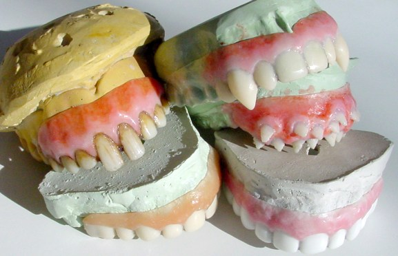 These rat teeth were made for Al Pacino in a Broadway production of Gypsy.