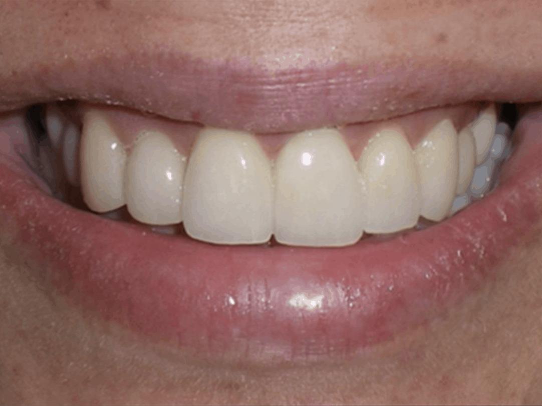 after dental veneers