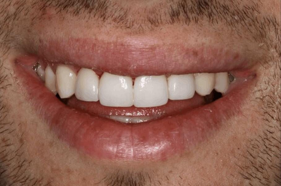emax dental veneers danbury